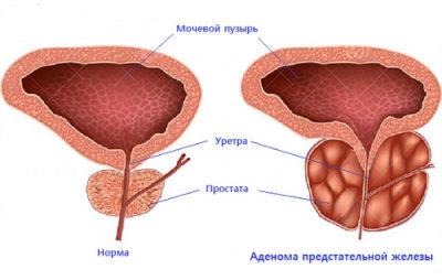 Что такое аденома предстательной железы