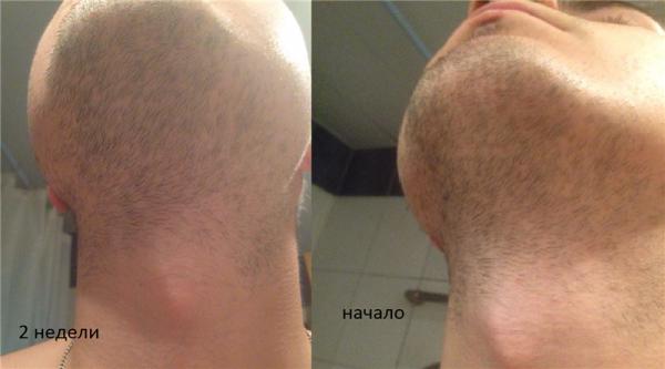 Репейное масло для бороды: как использовать для роста
