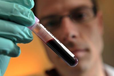 Сколько дней готовится анализ крови на пса
