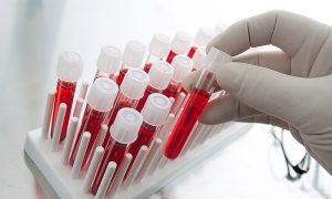 Анализ крови ПСА общий при простатите: норма