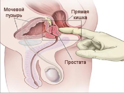 Лечение простатита в домашних условиях с помощью массажа