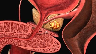 Лечение хронического калькулезного простатита народными средствами