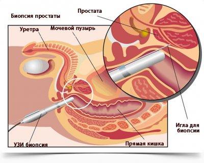 Сколько времени занимает биопсия простаты