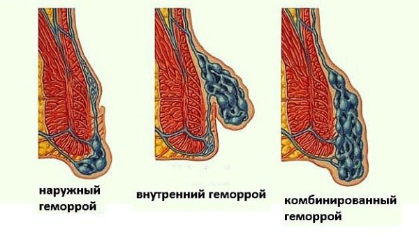 Мазь Вишневского при геморрое: инструкция как применять линимент, какой вид болезни можно мазать и как это правильно делать