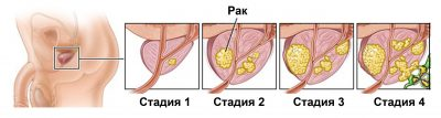 Лечение при раке 4ст
