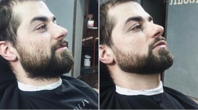 Что делать, если плохо растет борода: как отрастить густую?