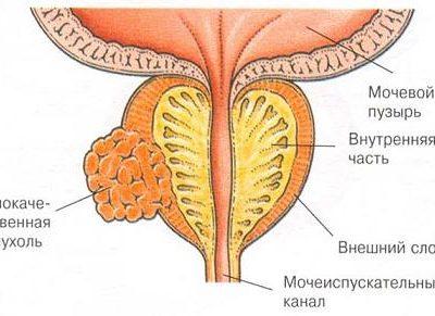 Лечение рака предстательной железы гормонами