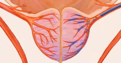 Эмболизация артерий аденомы простаты