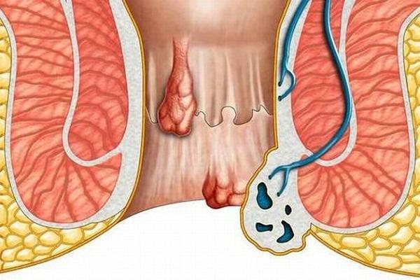 Шишка в заднем проходе у мужчин лечение