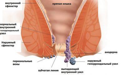 Лечение геморроя при обострении. Симптомы, чем лечить и что делать