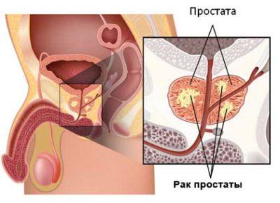 Шкала Глисона: классификация рака простаты по системе ТНМ