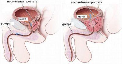 Лечение простатита у мужчин: лекарства и препараты, а так же список того, чем лечить заболевание