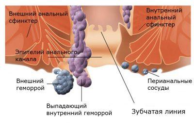 Тромбозный геморроидальный узел