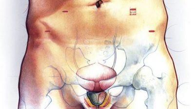 В чем различия простатита и аденомы простаты