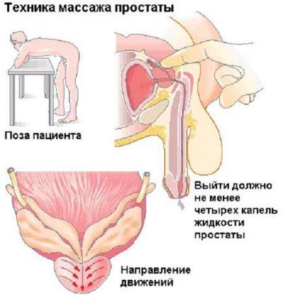 Непрямой наружный массаж простаты без проникновения, внешний массаж предстательной железы как делать наружно массаж простаты самостоятельно
