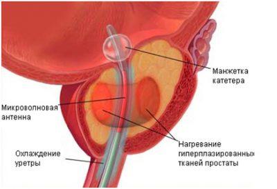 Трансуретральная микроволновая термотерапия