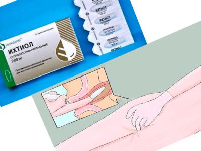Ихтиоловые свечи при геморрое: инструкция по применению и противопоказания к использованию препарата
