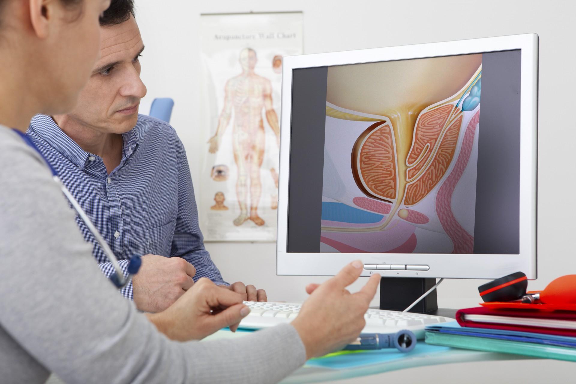 Начальная стадия аденомы простаты: лечение предстательной железы