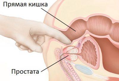 Причины по которым при массаже простаты может не выделяться секрет