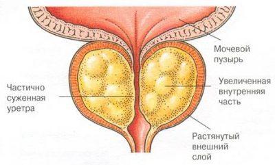 Смешанная эхогенность предстательной железы