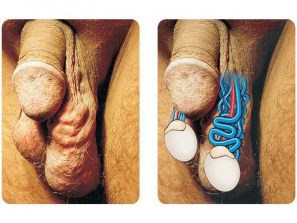Фото варикоцеле у мужчин левого яичка 52
