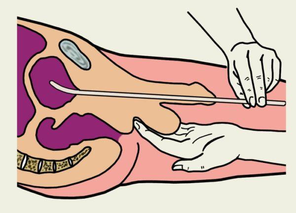 самый лучший урологический массаж