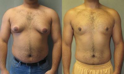 Гинекомастия у мужчин — причины, симптомы, лечение