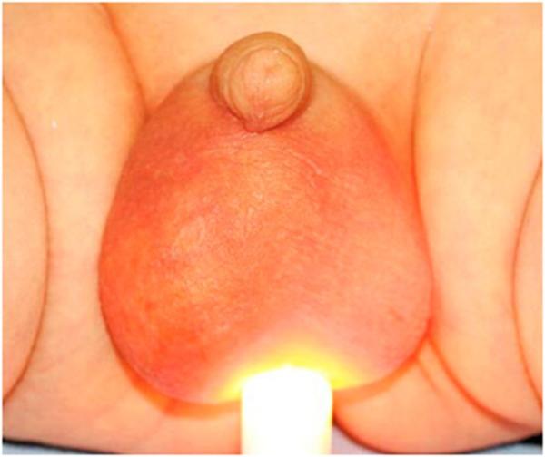 Водянка яичка у ребенка - гидроцеле