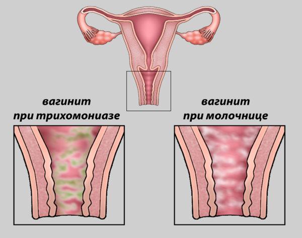 Баланопостит у женщин симптомы