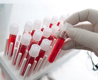 Лечение рака простаты за границей