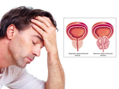 Аденома простаты - причины возникновения заболевания