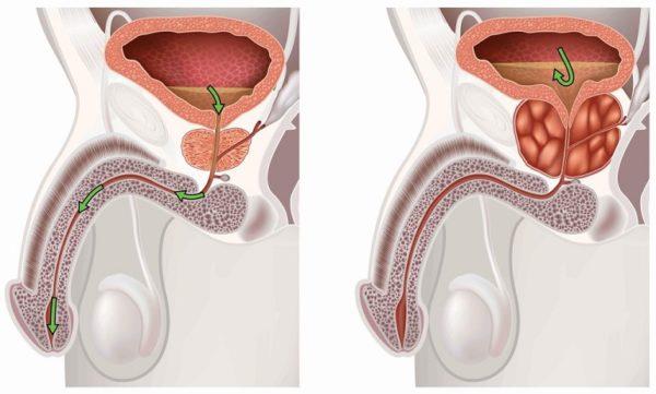 Причины появления заболевания простатита у мужчин