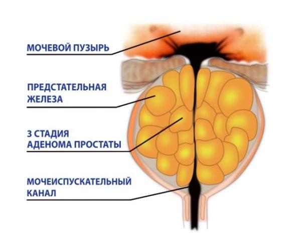 Урологические заболевания аденома простаты