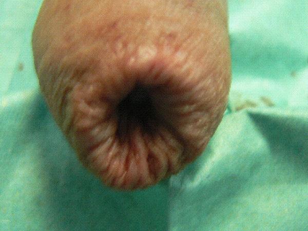 Рубцовый фимоз у мальчиков операция 4