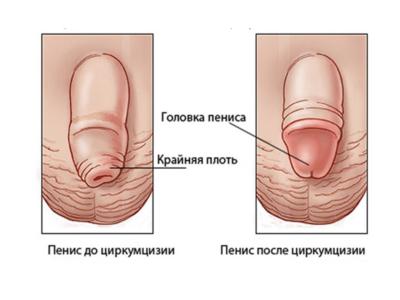 Обрезание крайней плоти у мужчин: варианты операций