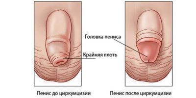 Частичное обрезание крайней плоти у мужчин
