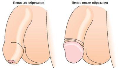 Обрезание по типу розочки