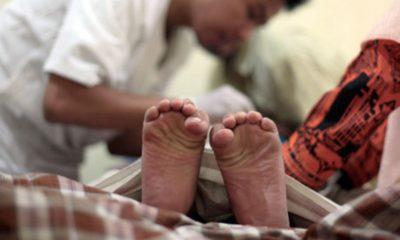Для чего делают обрезание мужчинам мусульманам