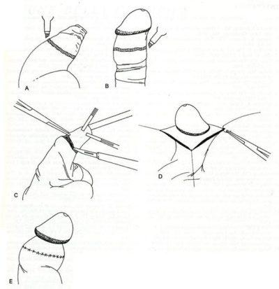 Обрезание крайней плоти лазером