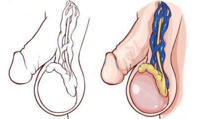 Варикоцеле у мужчин - 10 причин, симптомы, лечение, профилактика