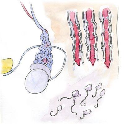 Чем лечить варикоцеле у мужчин