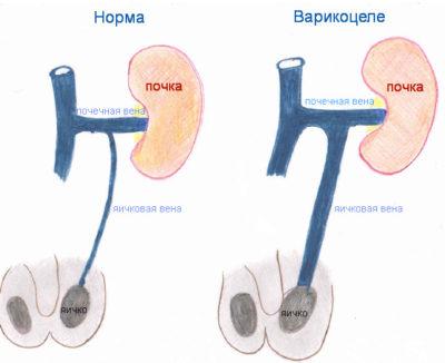Как определить степень варикоцеле – расширение вен семенного канатика лечение
